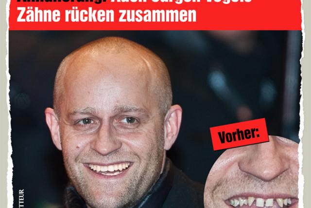 Juergens Zaehne - Der Gazetteur